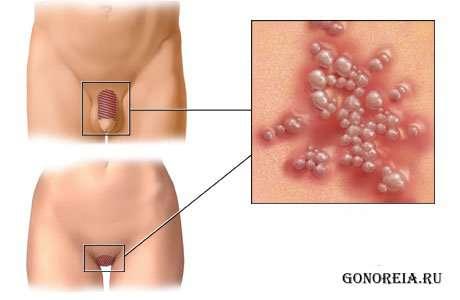 Симптомы венерических заболеваний передающихся через оральный секс