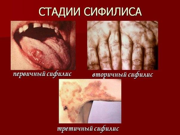 заражение организма паразитами симптомы