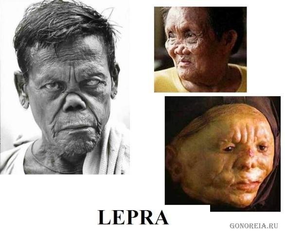 проказа фото лепра