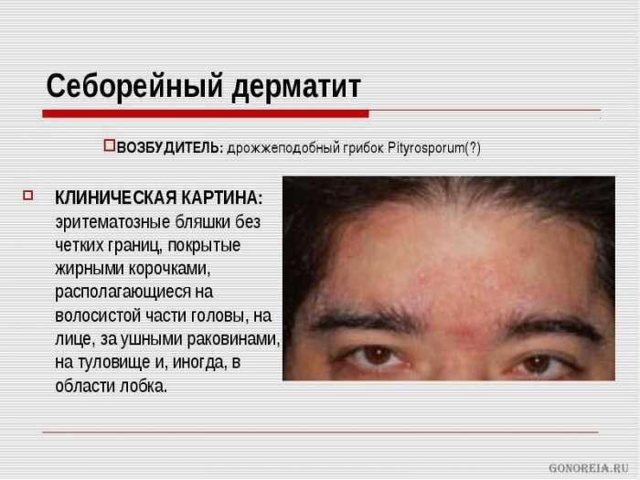 Лекарство себорейный дерматит фото