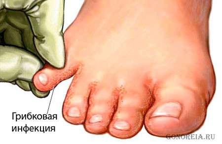 Можно ли лечить супер чистотелом грибок ногтей