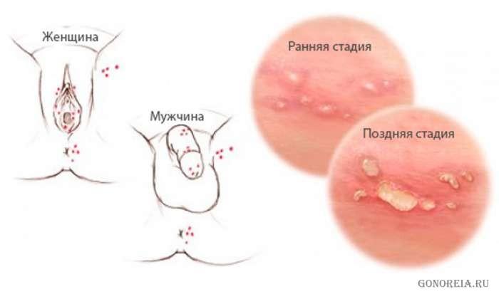 Вирус передающийся через оральный секс