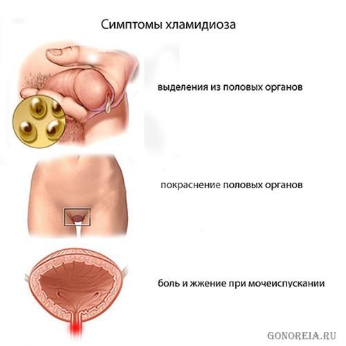 Как распознать человека болеющего туберкулезом