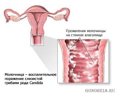 Молочница симптомы нарушение эрекции