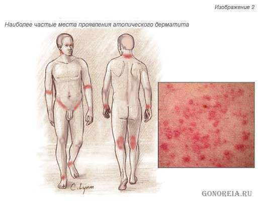 Лечение атопического дерматита