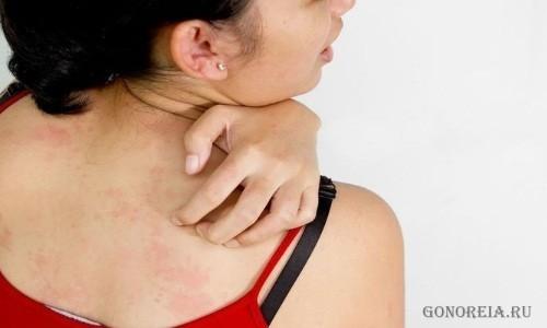 Лечение перорального дерматита