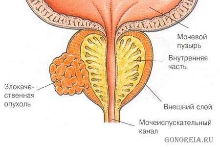 Влияние тестостерона на простатит