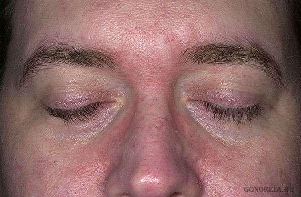 Лечение себорейного дерматита на лице - советы
