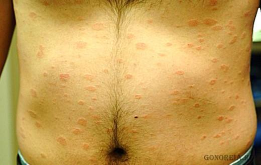 Как проявляются венерологические заболевания у мужчин