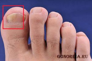 Начальная стадия грибка ногтя большого пальца
