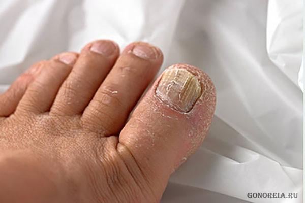 Запущенная стадия онихомикоза на большом пальце
