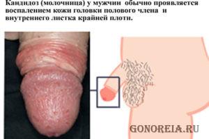 Воспаление головки полового члена и внутреннего листка крайней плоти