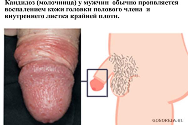 molochnitsa-zud-i-seks